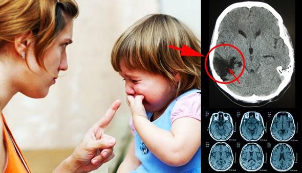 Orang Tua Tolong Perhatikan Inilah Dampak Buruk Yang Terjadi Pada Otak Anak Bila Sering Dibentak