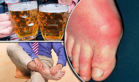 Gout Diet Beer Is High In Purines And Can Make Gout Symptoms Worse 814221