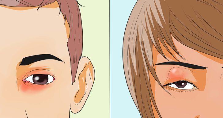 Sakitnya Bila Ketumbit Kat Mata, Inilah 8 Petua Menghilangkan Ketumbit Dengan Cepat Dan Berkesan