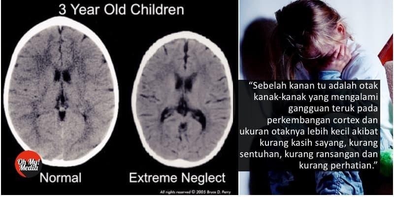 Dasyatnya Kesan Pada Otak Jika Anak Selalu Diabaikan
