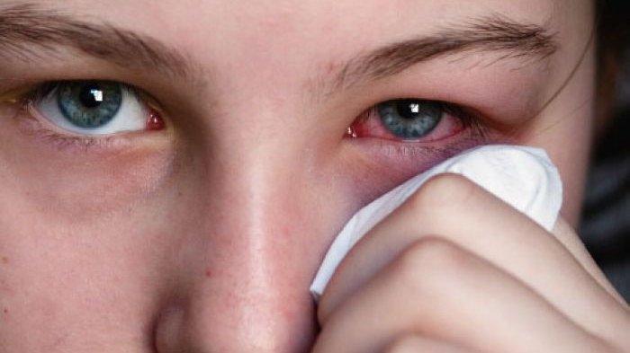 Inilah Punca Mata Pedih Dan Gatal, Simptom Dan Rawatannya