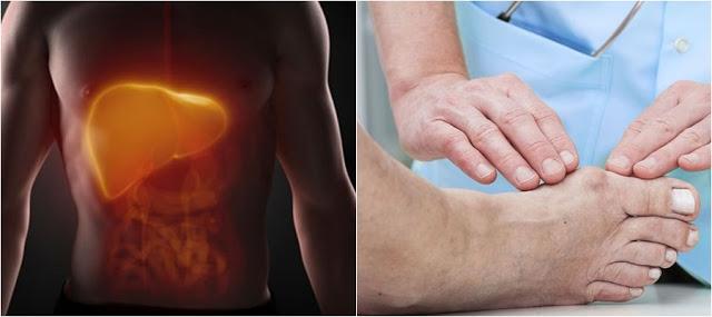 8 Penyakit Ini Dapat Dilihat Tanda-Tandanya Melalui Perubahan Kaki