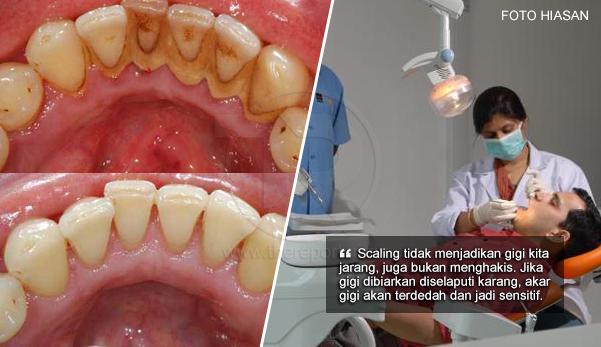 Scaling Tidak Akan Menyebabkan Gigi Jarang, Doktor Gigi Jelaskan Mitos Mengenai Proses Cuci Gigi